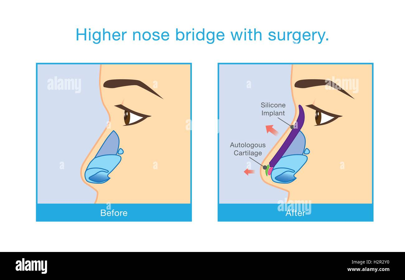 Higher nose bridge with surgery. - Stock Image