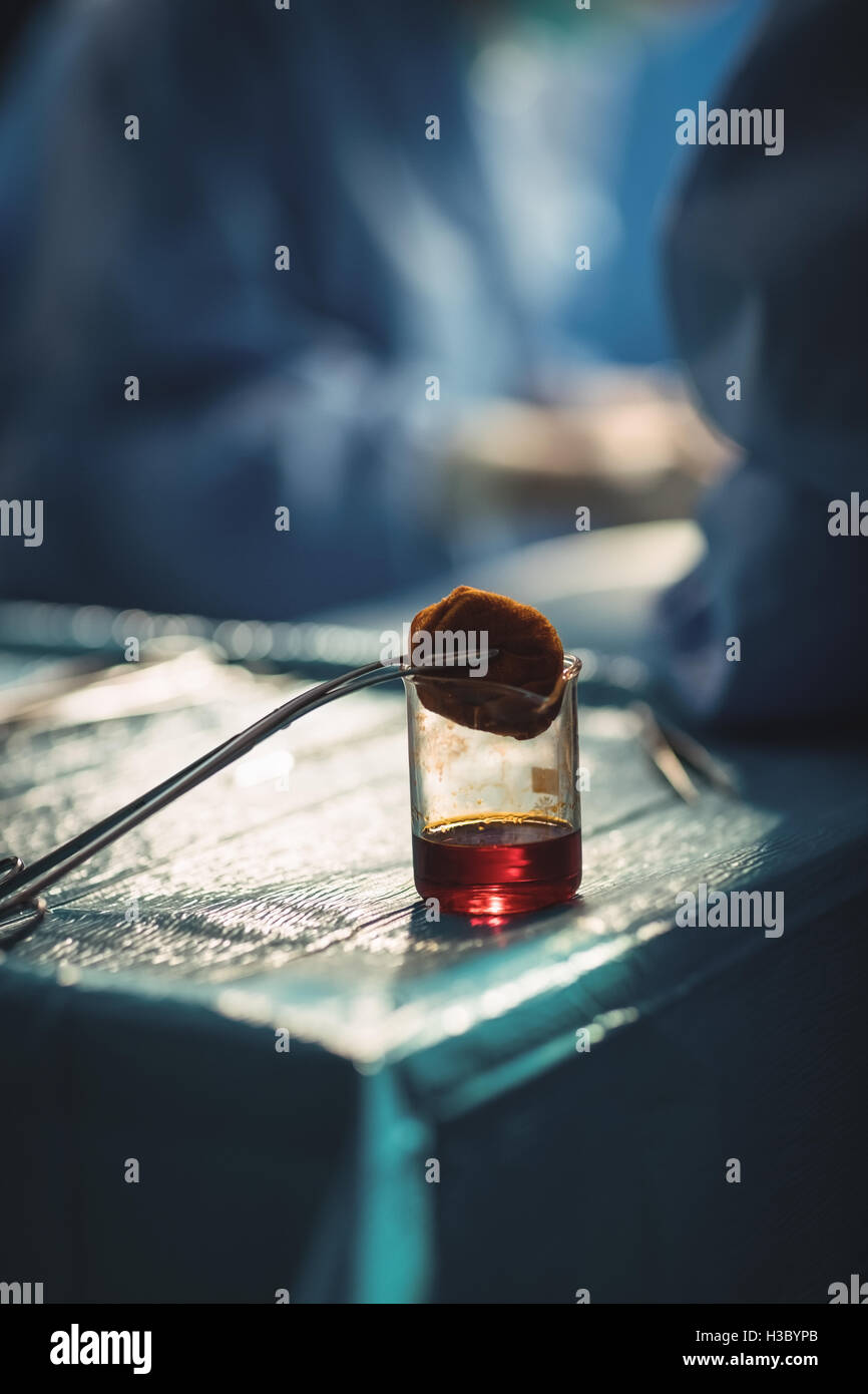 Sample of blood drained in a container in operation room - Stock Image