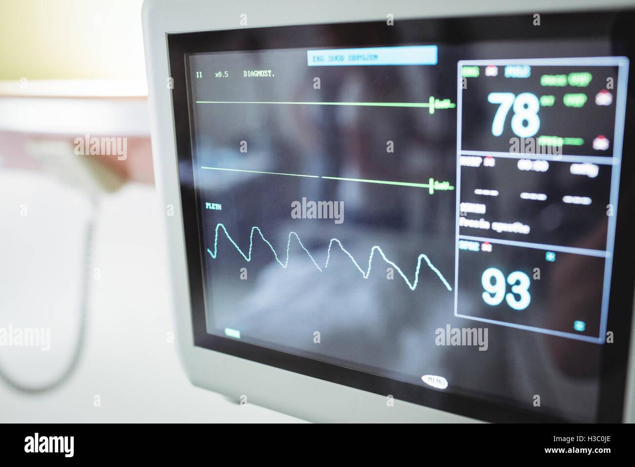 Close-up of vital signs monitor - Stock Image