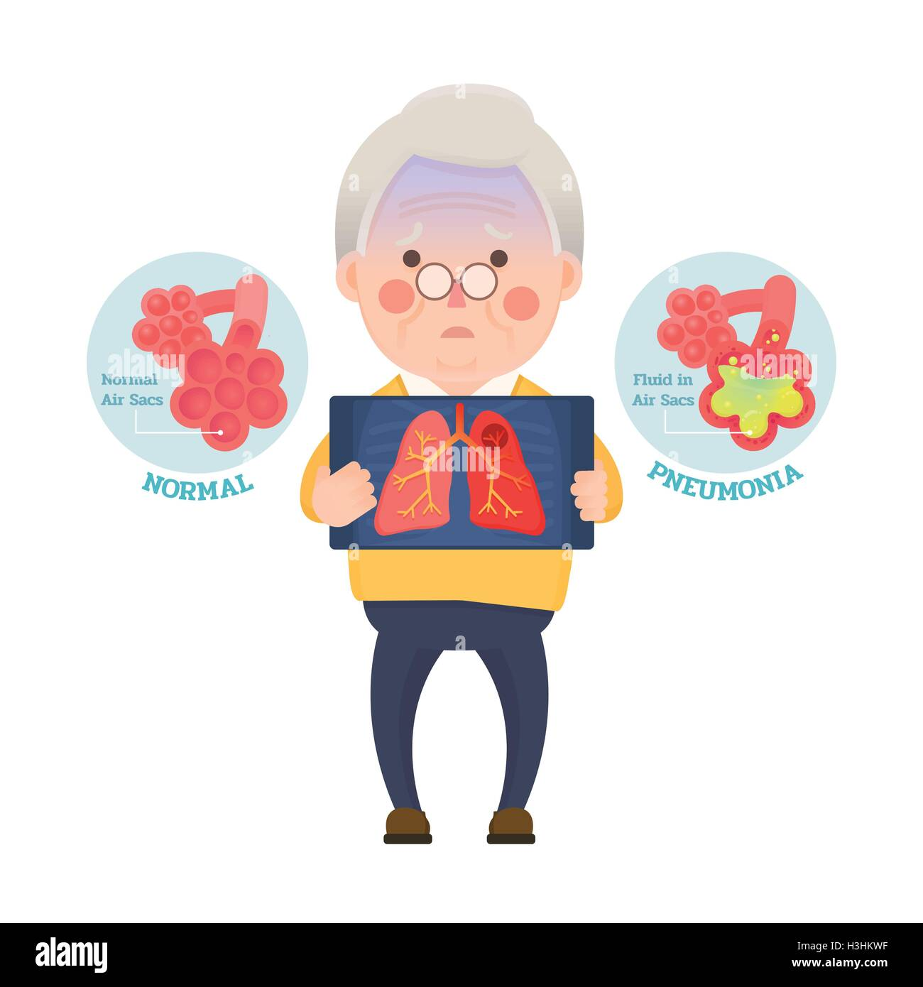 Vector Illustration of Old Man Holding X-ray Image Showing Lung Pneumonia Problem, Cartoon Character - Stock Image