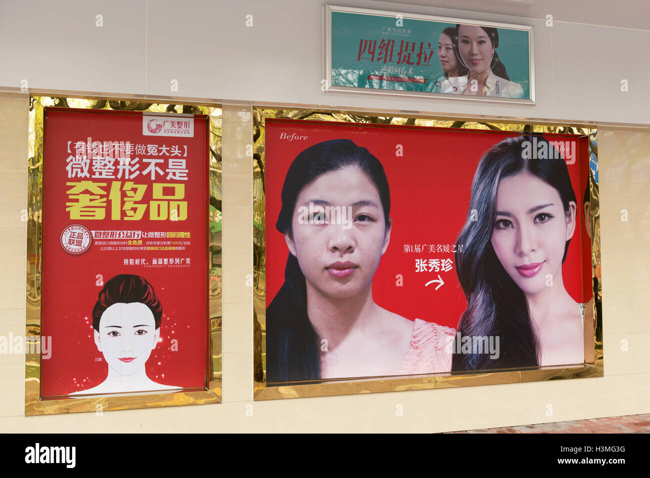 Plastic Surgery outdoor advertisement in China - Stock Image