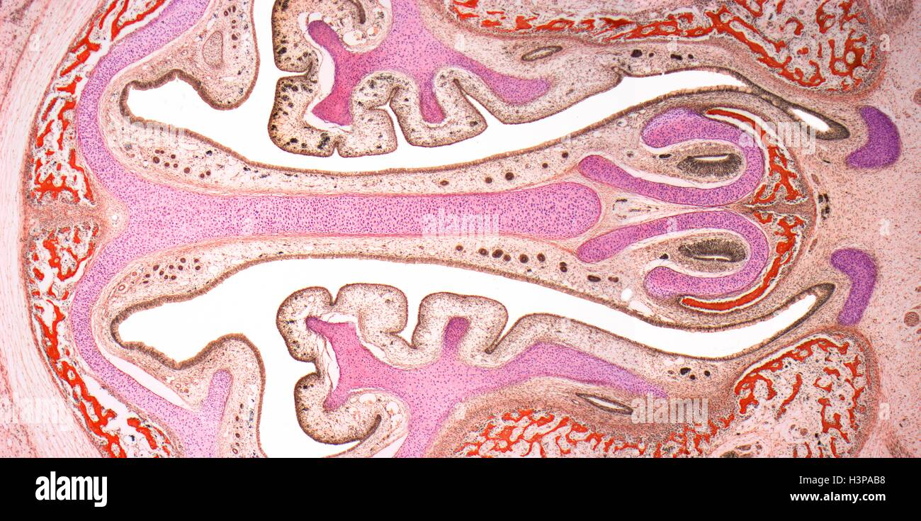 Nasal sinuses. Light micrograph (LM) of the nasal sinuses ( lined by brown epithelium ) and the supporting cartilages - Stock Image