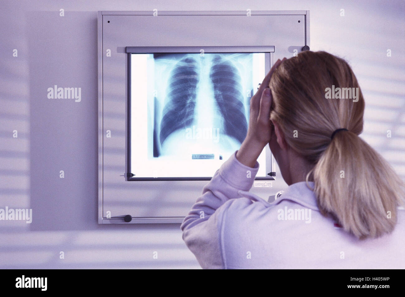 Medical practise, roentgenogram, patient, gesture, desperation, back view, practise, roentgenology, X-ray picture, - Stock Image