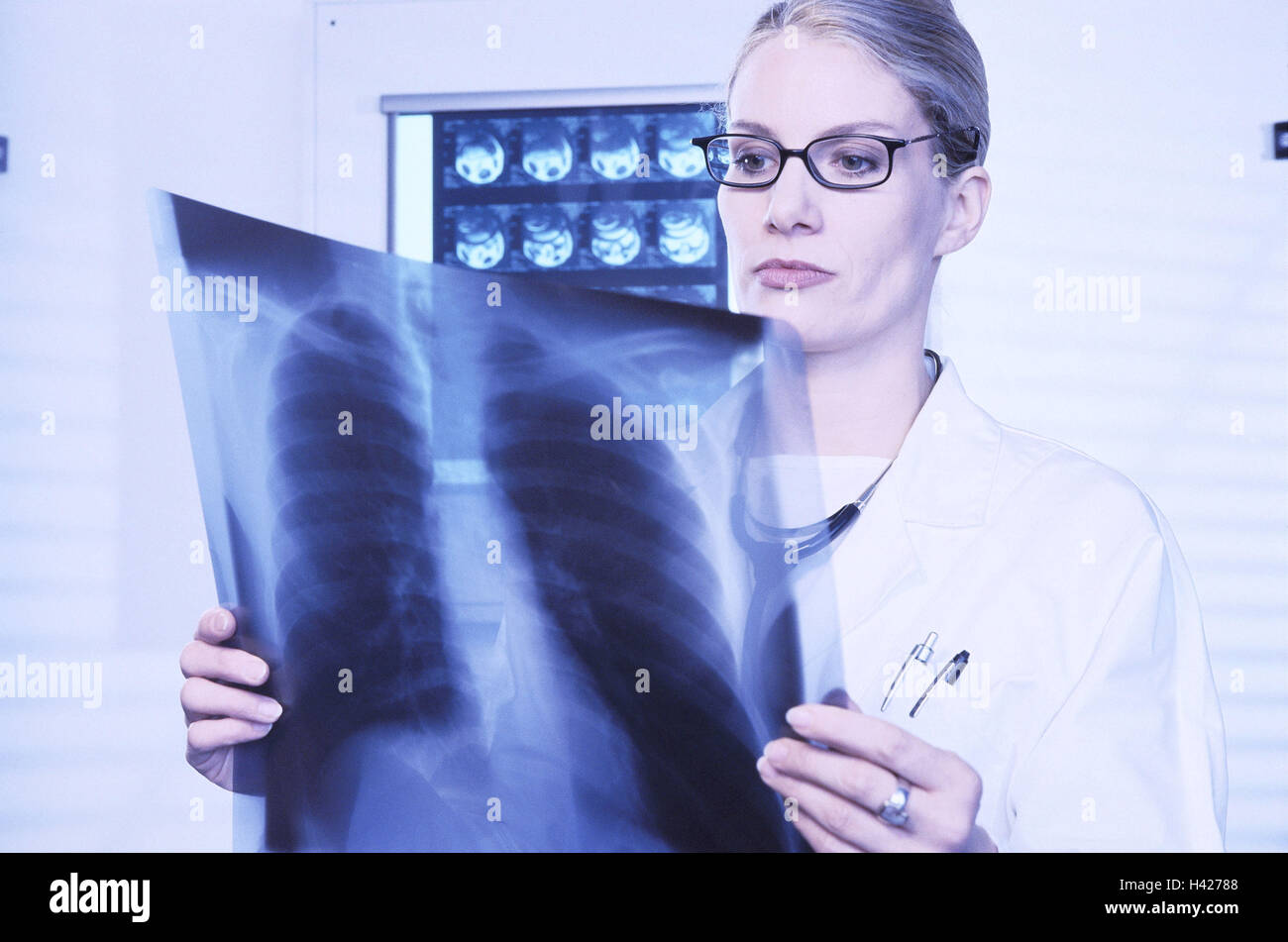 At doctor, seriously, roentgenogram, look, diagnostic, portrait, practise, medical practise, roentgenology, X-ray - Stock Image