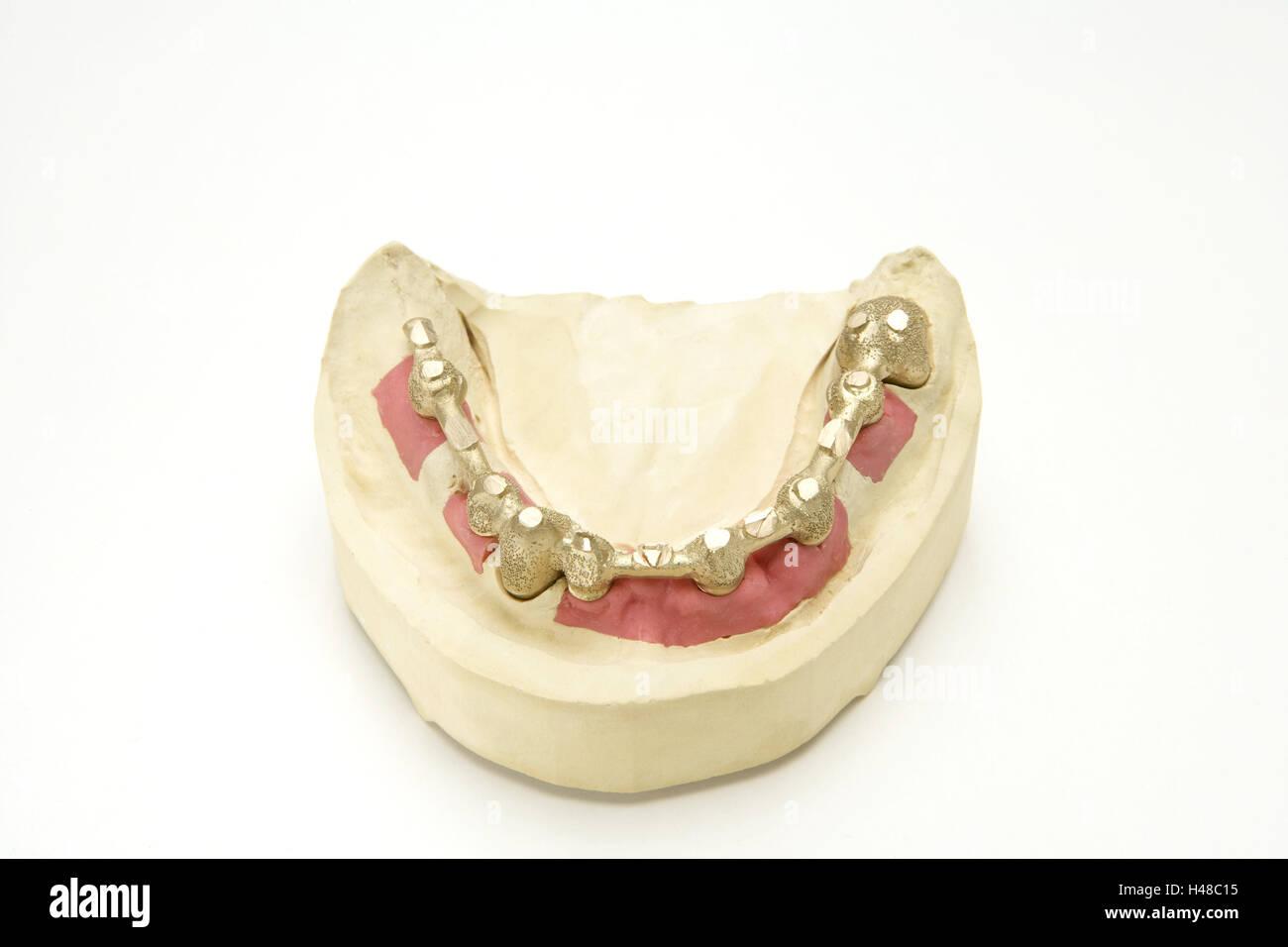 Set dentures, crowns, gypsum model, cog laboratory, denture, prosthesis, bite, loosely, gold teeth, cog precaution, - Stock Image