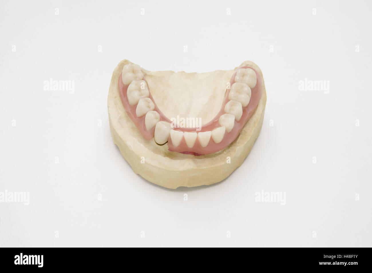 Denture, lower jaw, gypsum model, set dentures, cog laboratory, prosthesis, bite, cogs, cog precaution, dentistry, - Stock Image