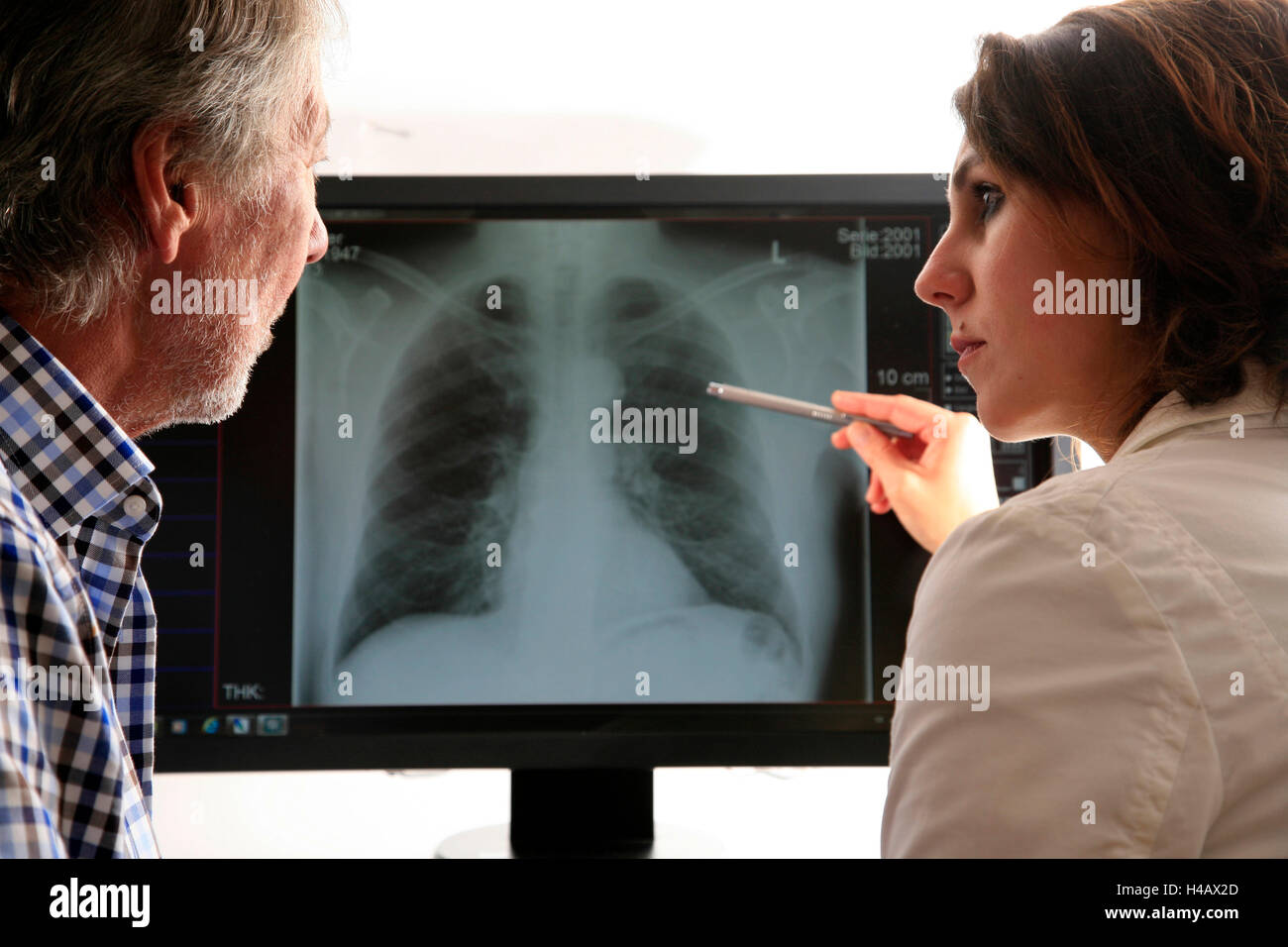 Doctor, patient, X-ray picture, lung, diagnosis, consultation - Stock Image