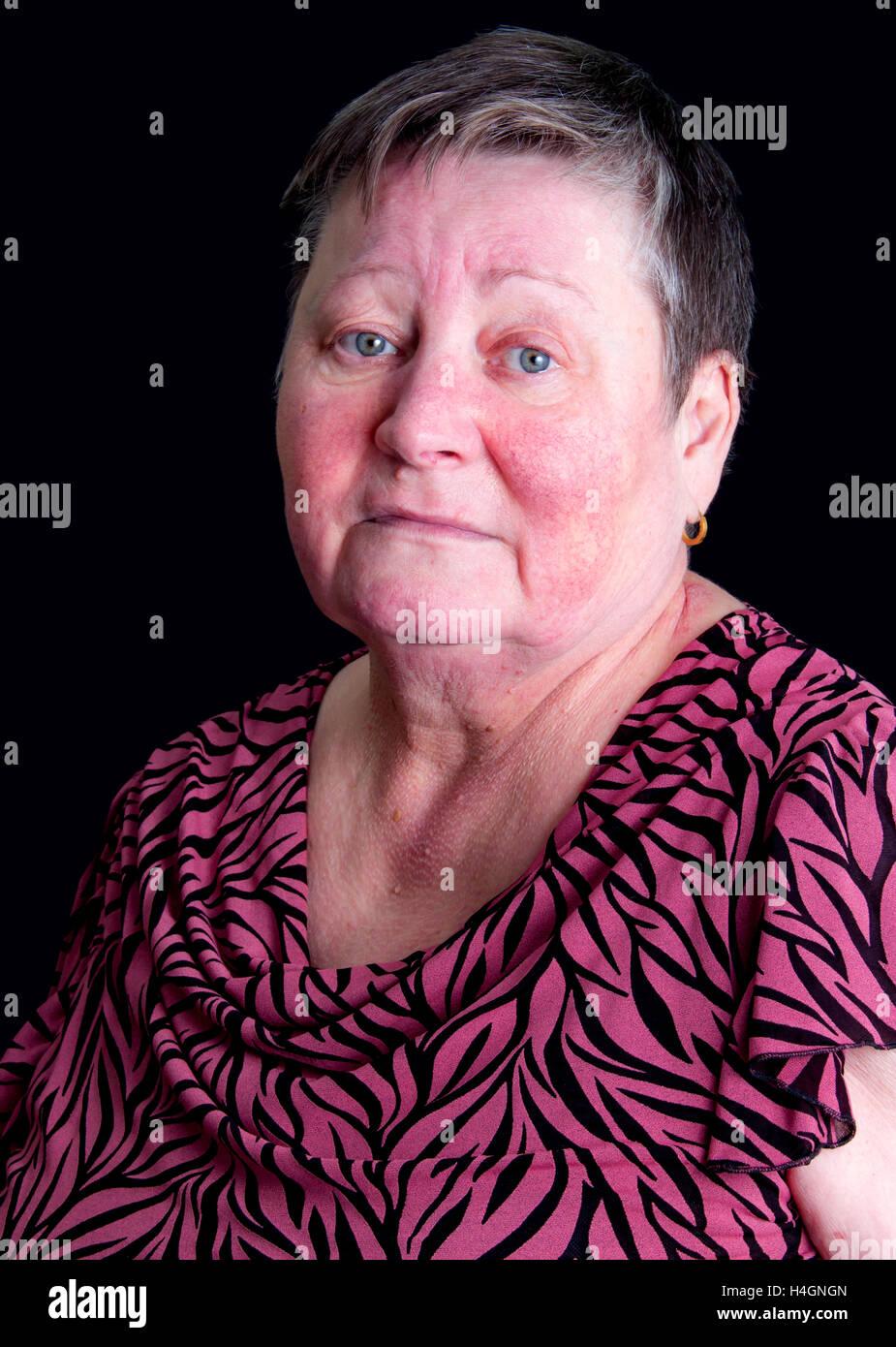 Portrait of unhappy sad senior woman with rosacea skin desease, photo studio portrait isolated on black background, Stock Photo
