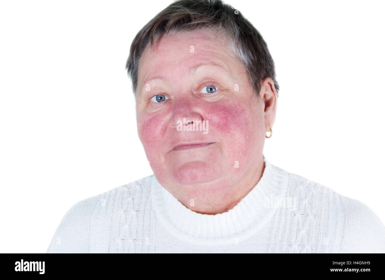 Unhappy elderly woman with skin condition rosacea characterized by facial redness, small and superficial dilated blood vessels,  Stock Photo