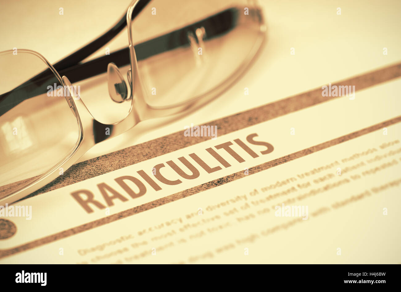 What is radiculitis, how does it differ from osteochondrosis, and how to treat it