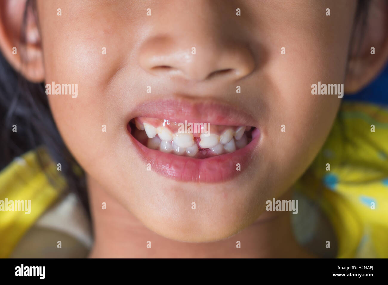 kid patient open mouth showing cavities. - Stock Image