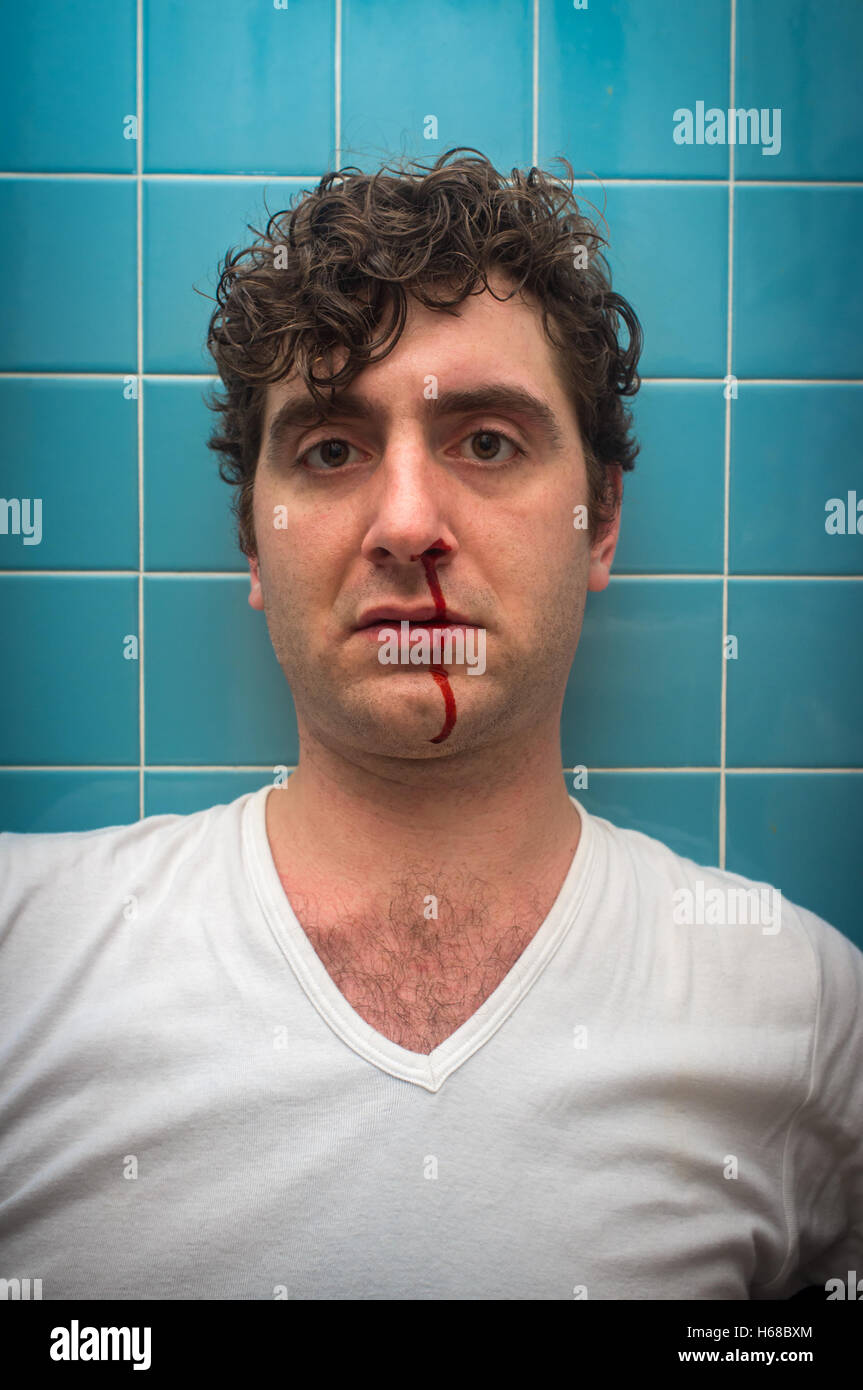 Bleeding Wound Head Stock Photos Bleeding Wound Head Stock Images Alamy