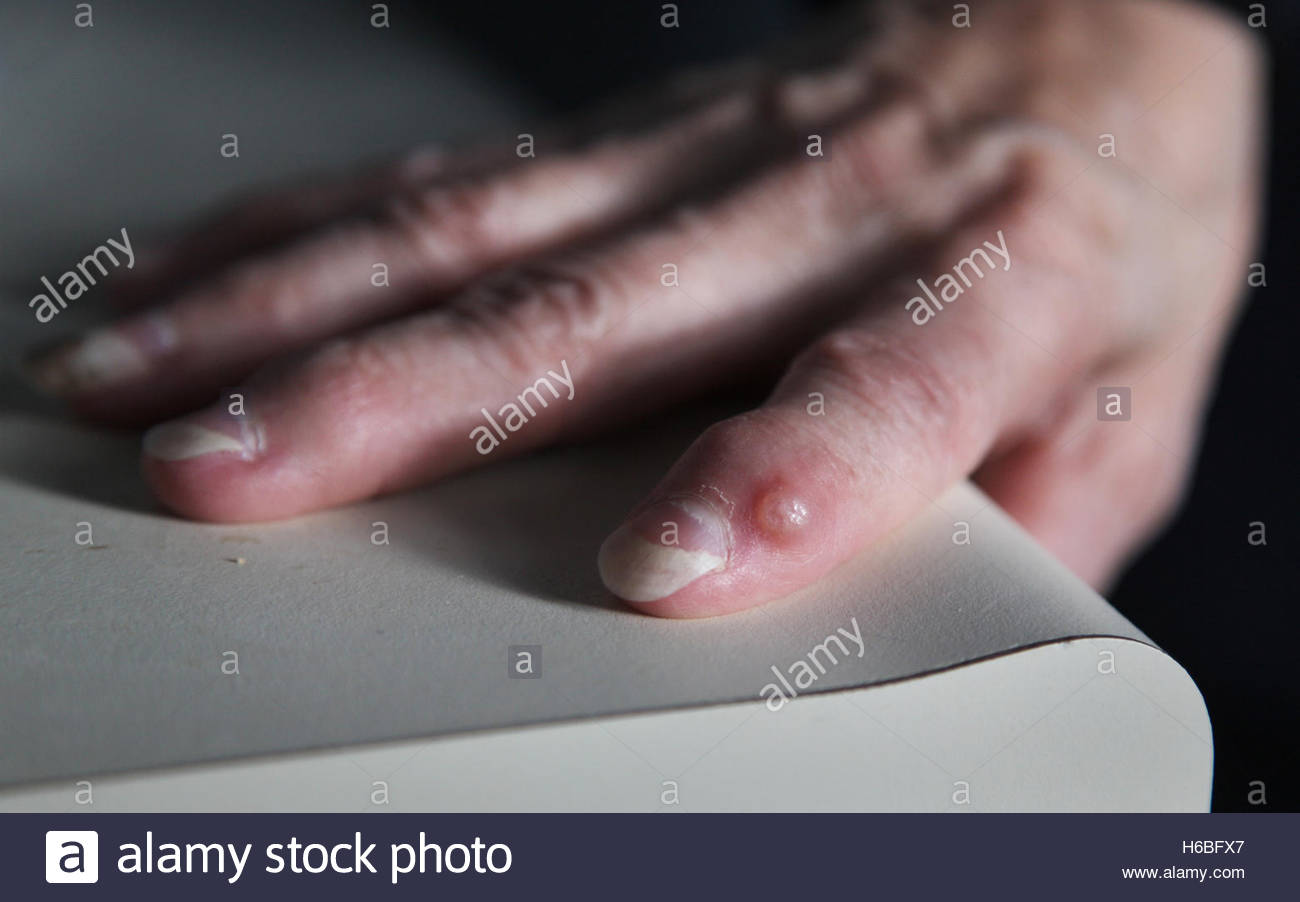 A digital mucous cyst on the finger of a middle-aged woman. - Stock Image