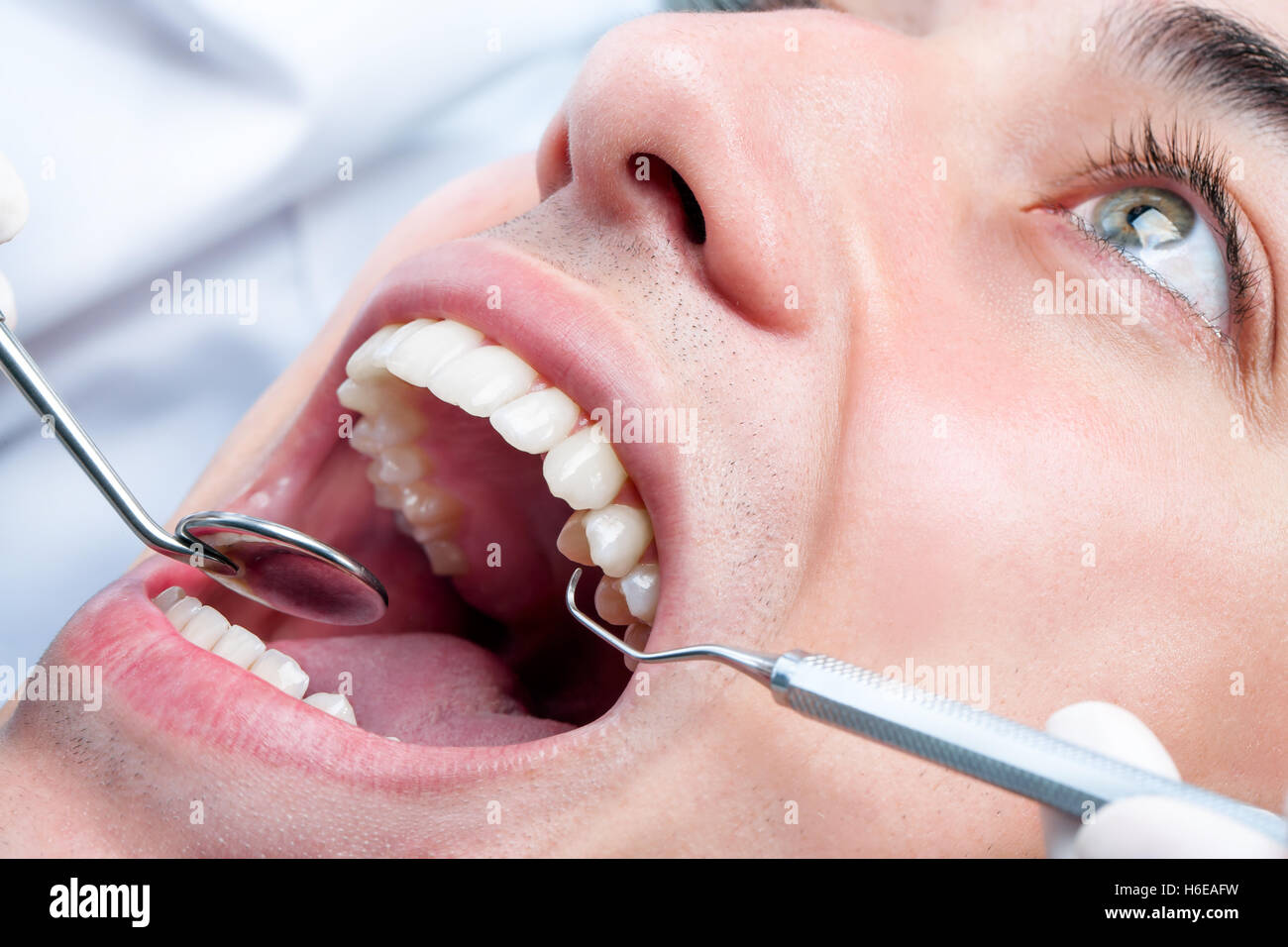 Extreme Close Up Of Young Man Whitening Teeth At Dentist Open Human