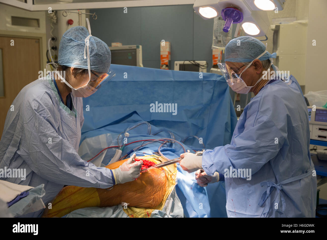 Total Knee replacement Operation in a Hospital theatre - Stock Image
