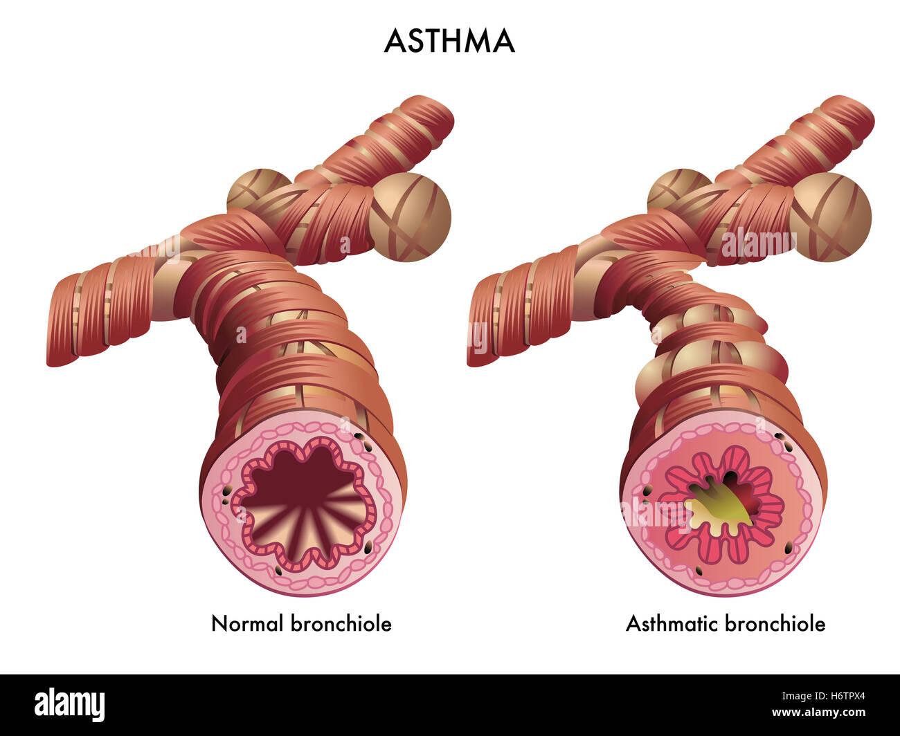 asthma disease asthma infection respiration illness