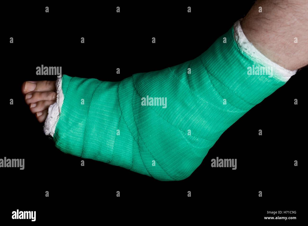 Leg Cast Stock Photos & Leg Cast Stock Images - Alamy