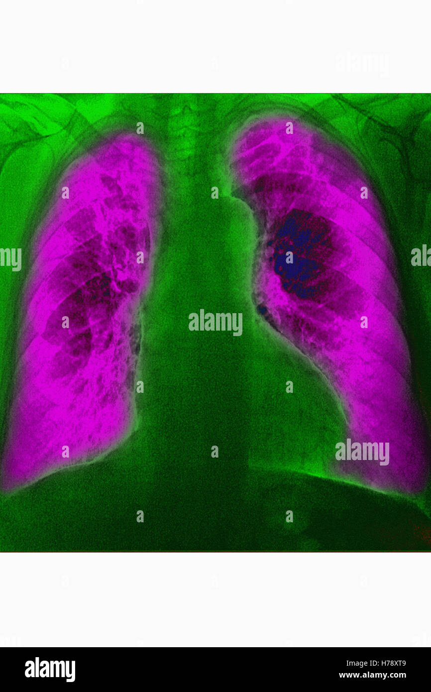 PNEUMONIA, X-RAY - Stock Image