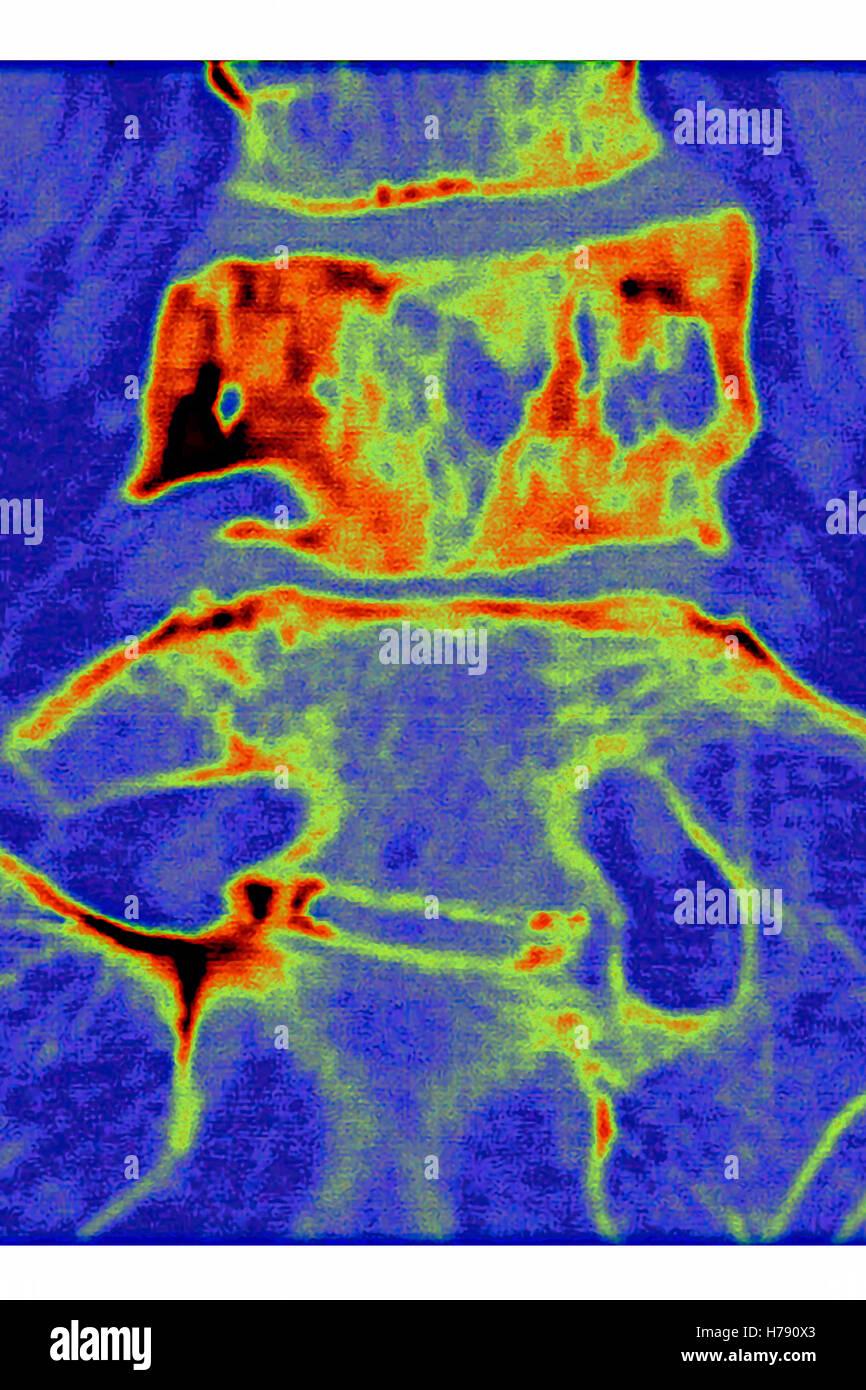 PAGET'S DISEASE, MRI - Stock Image