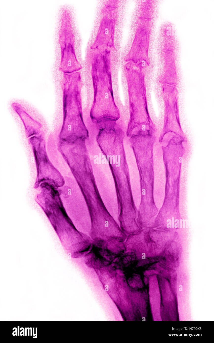 RHEUMATOID ARTHRITIS, X-RAY - Stock Image