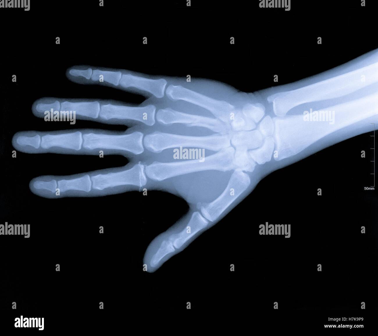 Xray image of human arms - Stock Image