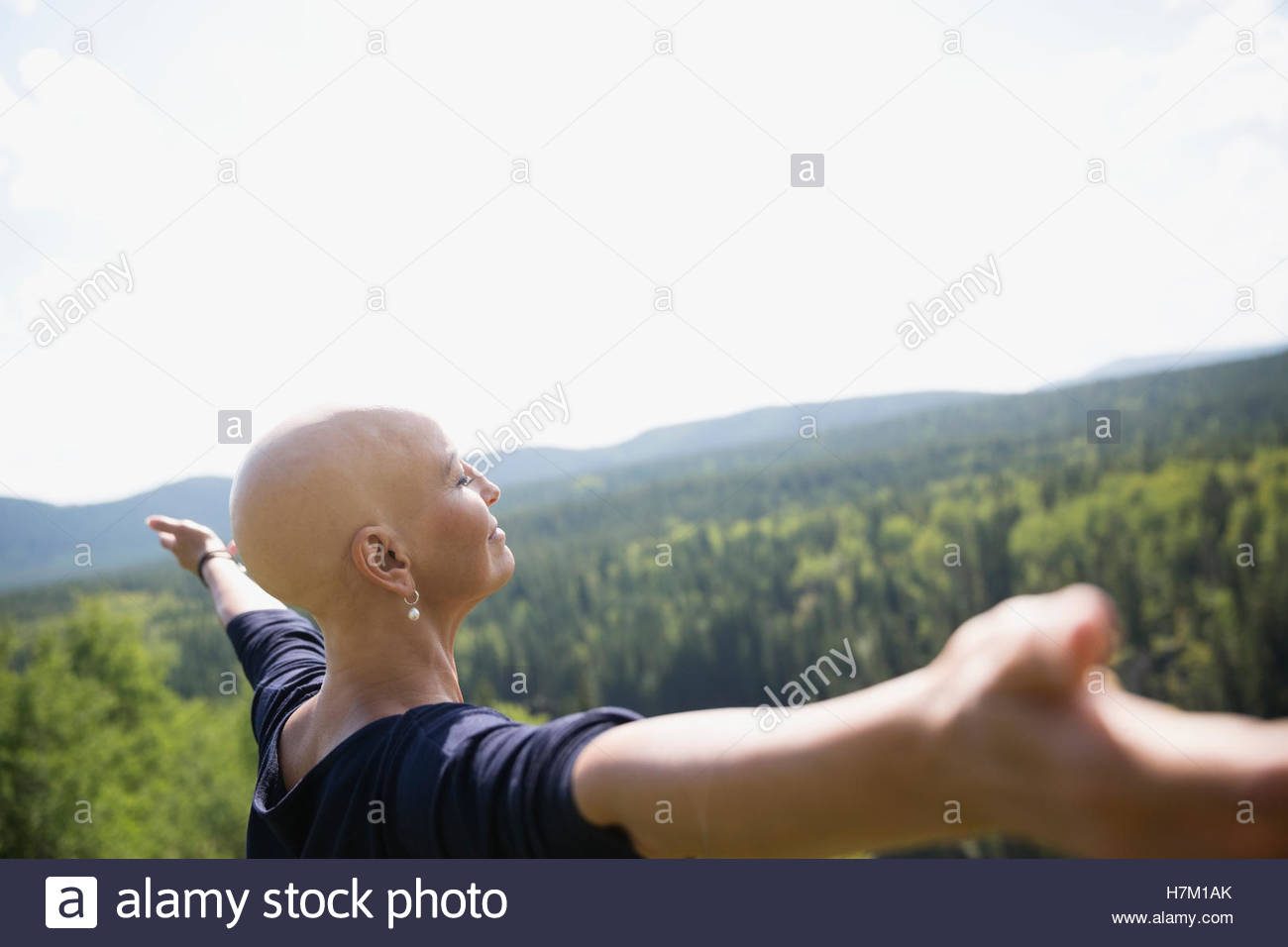 Female cancer survivor with shaved head with arms outstretched at sunny remote rural view - Stock Image