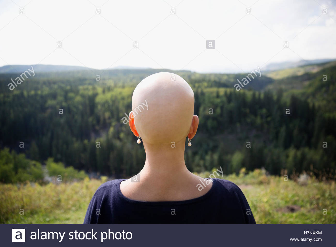 Female cancer survivor with shaved head looking at remote rural view - Stock Image