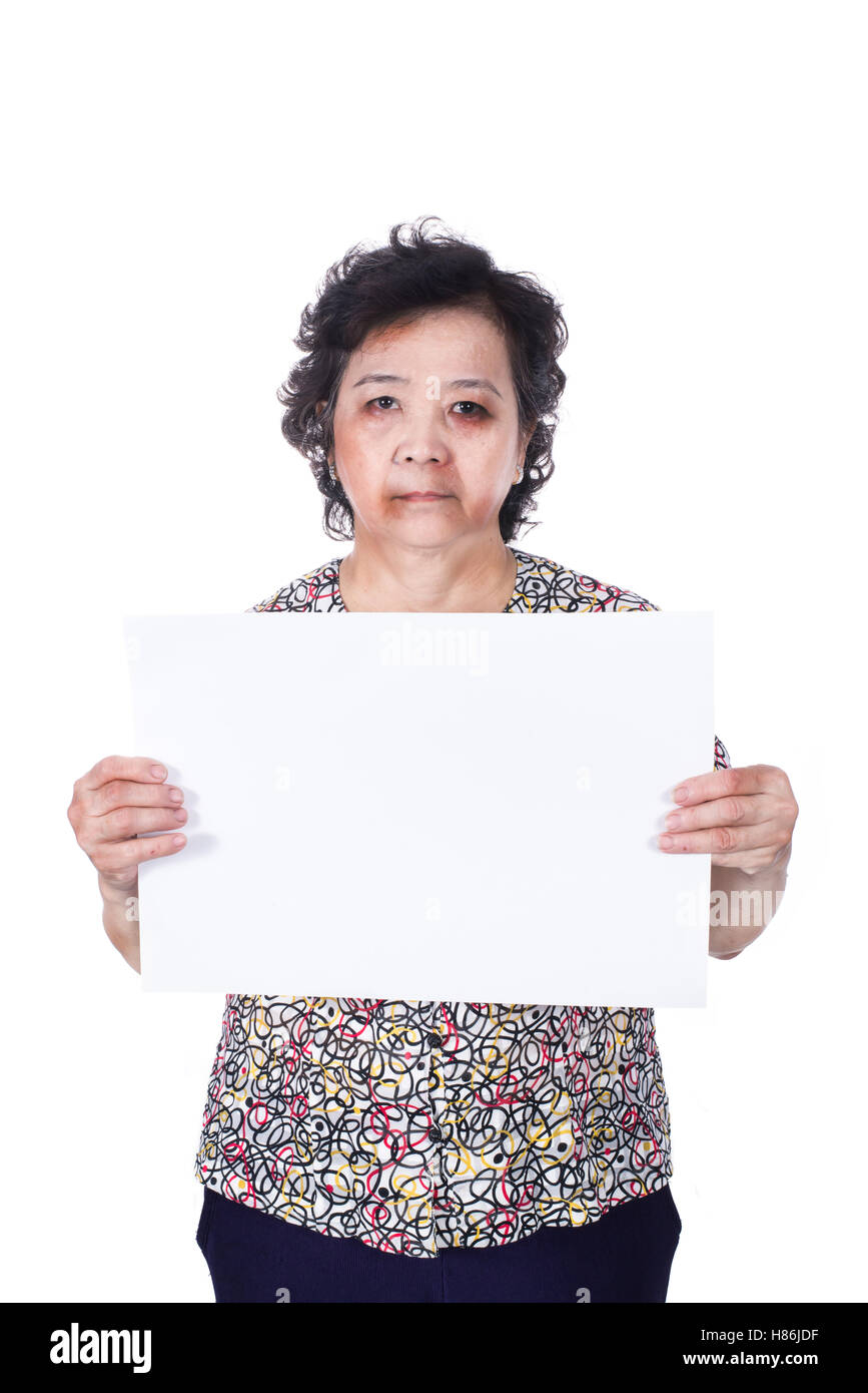 Senior abuse or elder mistreatment with a black eye bruised and injured holding empty horizontal blank paper. - Stock Image