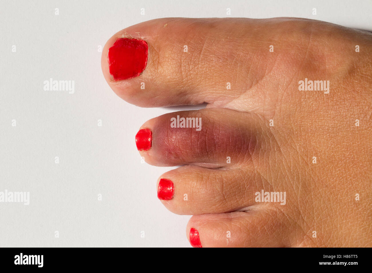 A woman's foot with a broken toe showing bruised area on second toe - Stock Image
