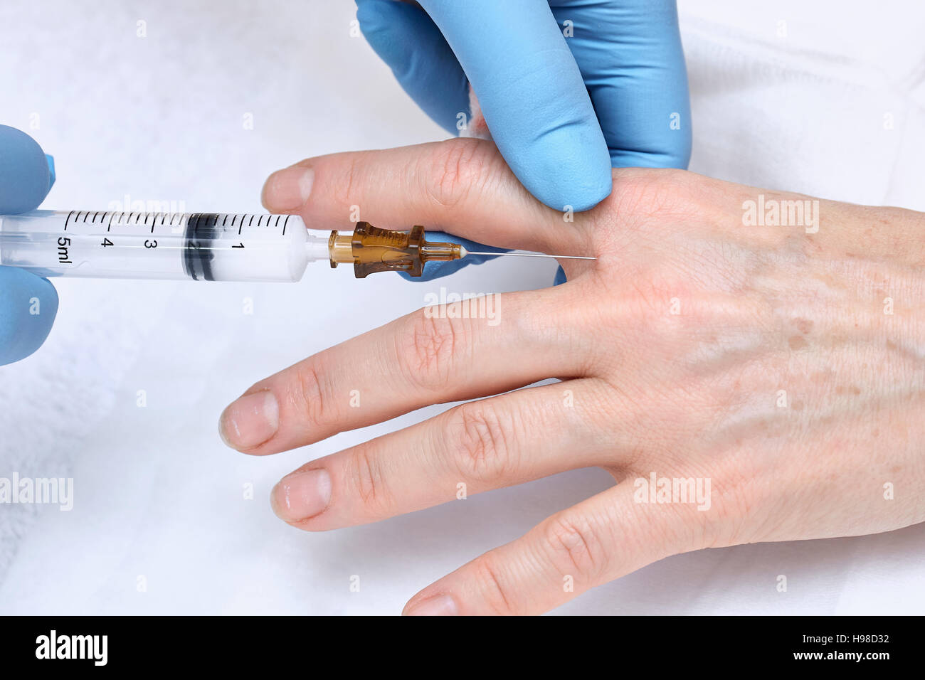 Anti-age injection therapy. Hand rejuvenation - Stock Image