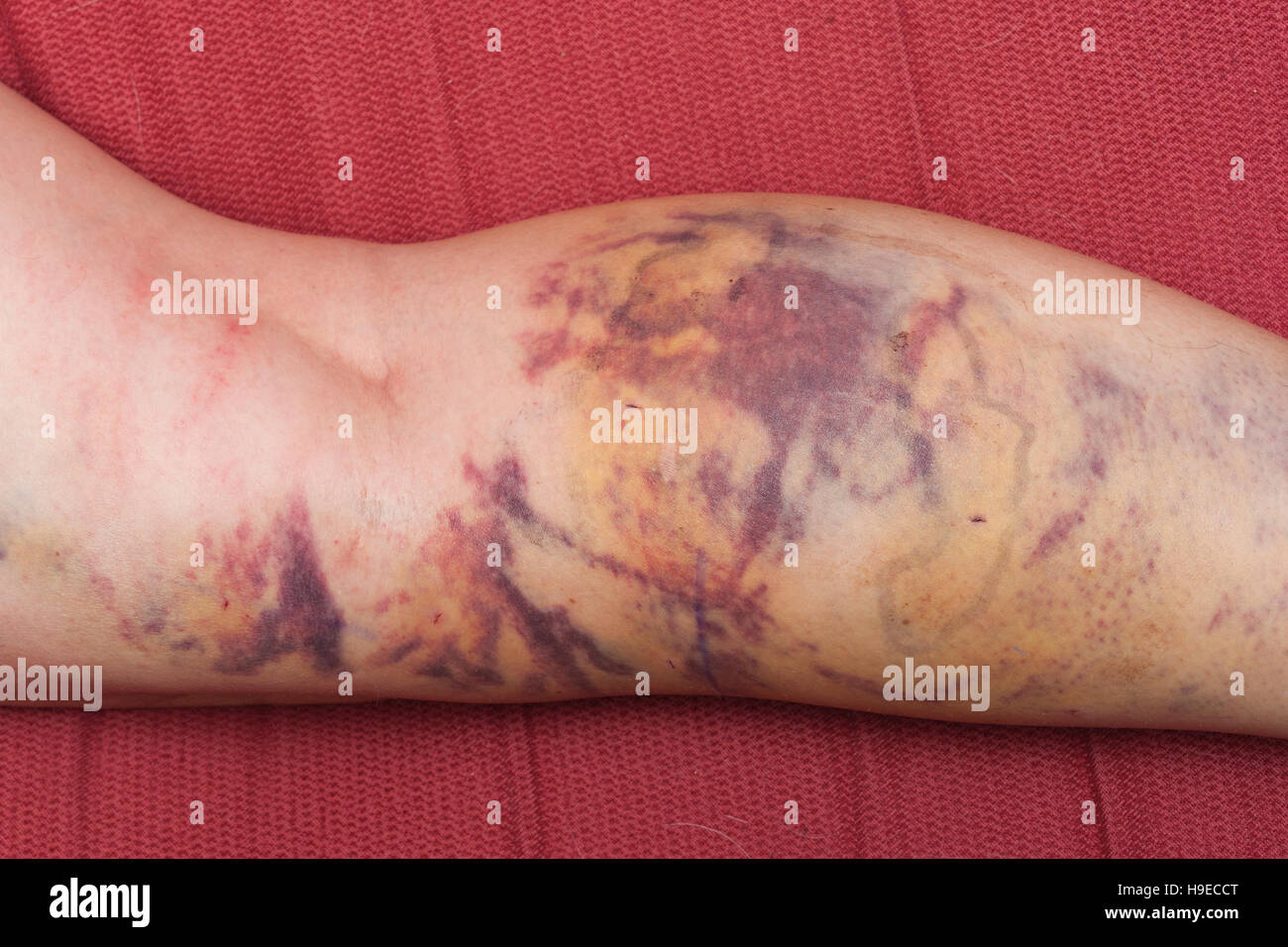 Bruises on the leg of a woman after having varicose veins removed by laser in the Uk - Stock Image