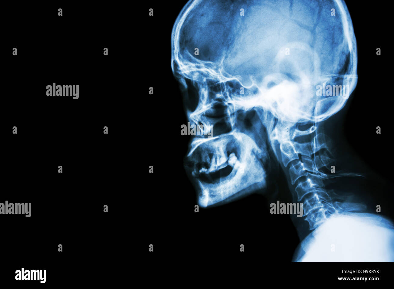 Film x-ray Skull lateral view show normal human\'s skull and cervical ...