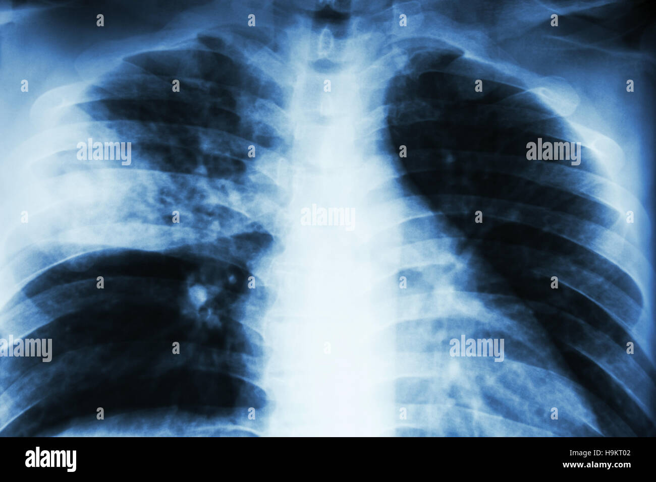 Lobar pneumonia . film chest x-ray show alveolar infiltration at right middle lobe due to tuberculosis infection - Stock Image