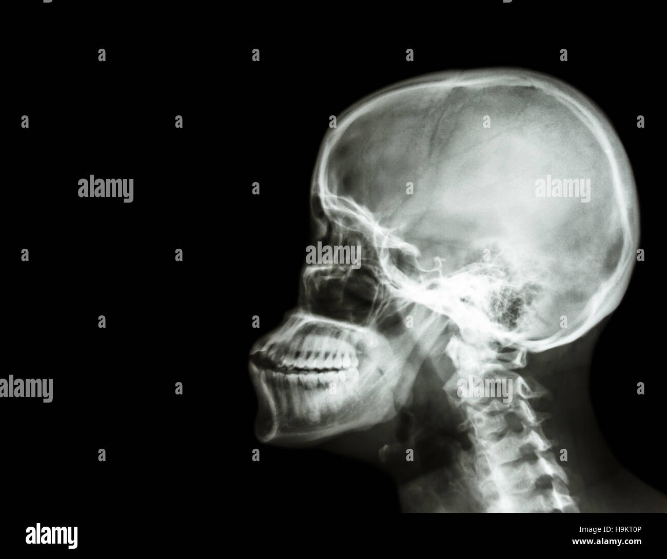 Film x-ray skull and cervical spine lateral view . blank area at ...