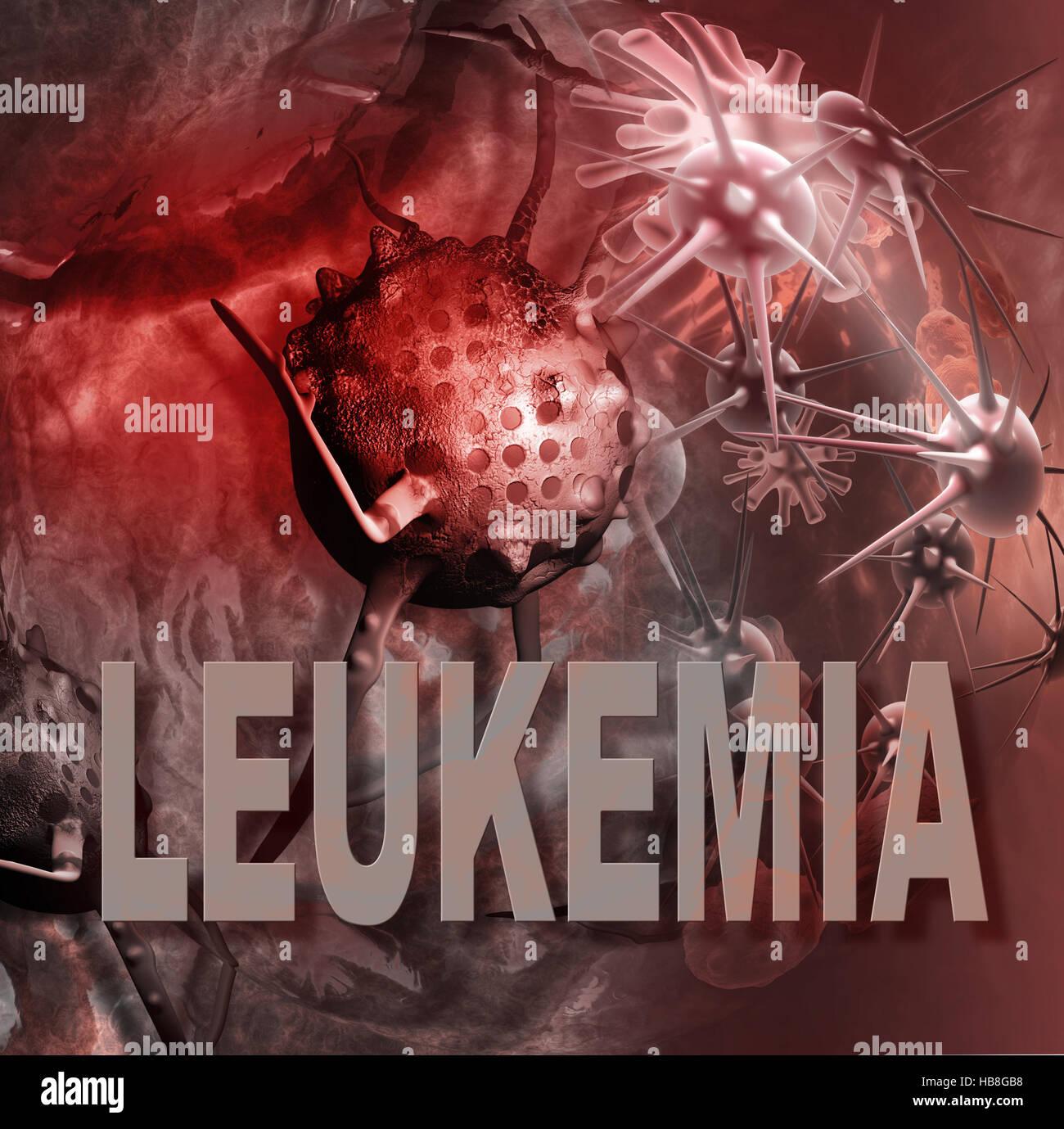 leukemia cells - Stock Image