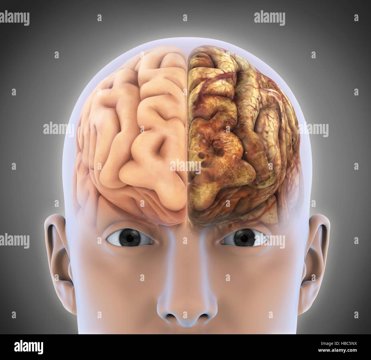 Mri Of Brain Tumor Stock Photos & Mri Of Brain Tumor Stock Images ...