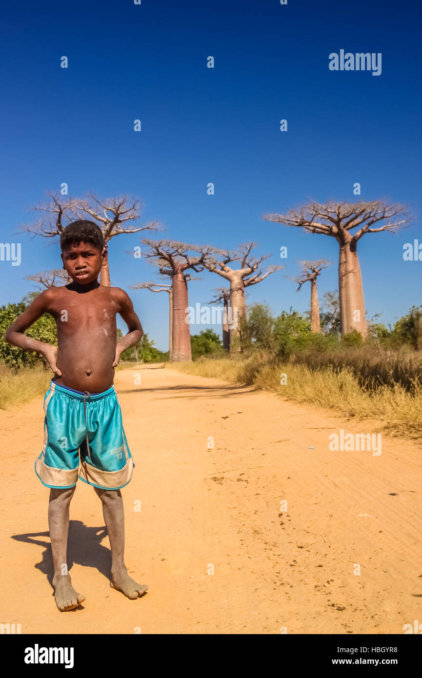 Malagasy boy and baobabs - Stock Image