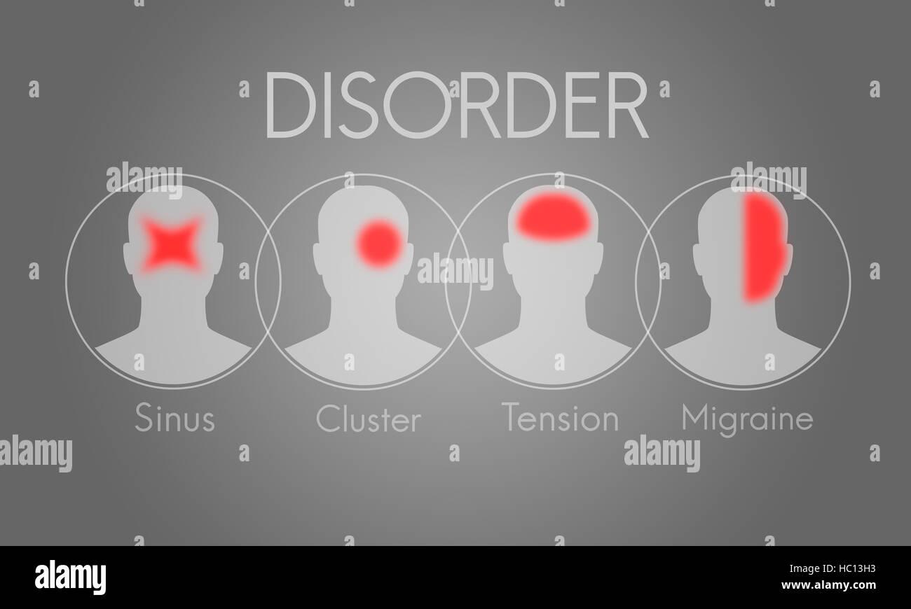 Headache Symptom Migraine Tension Cluster Concept - Stock Image