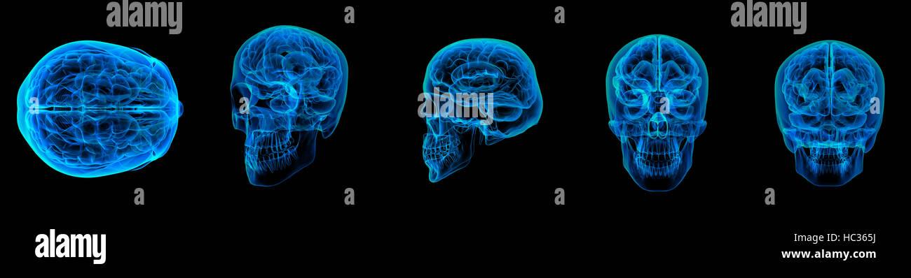 3d render human brain X ray - Stock Image