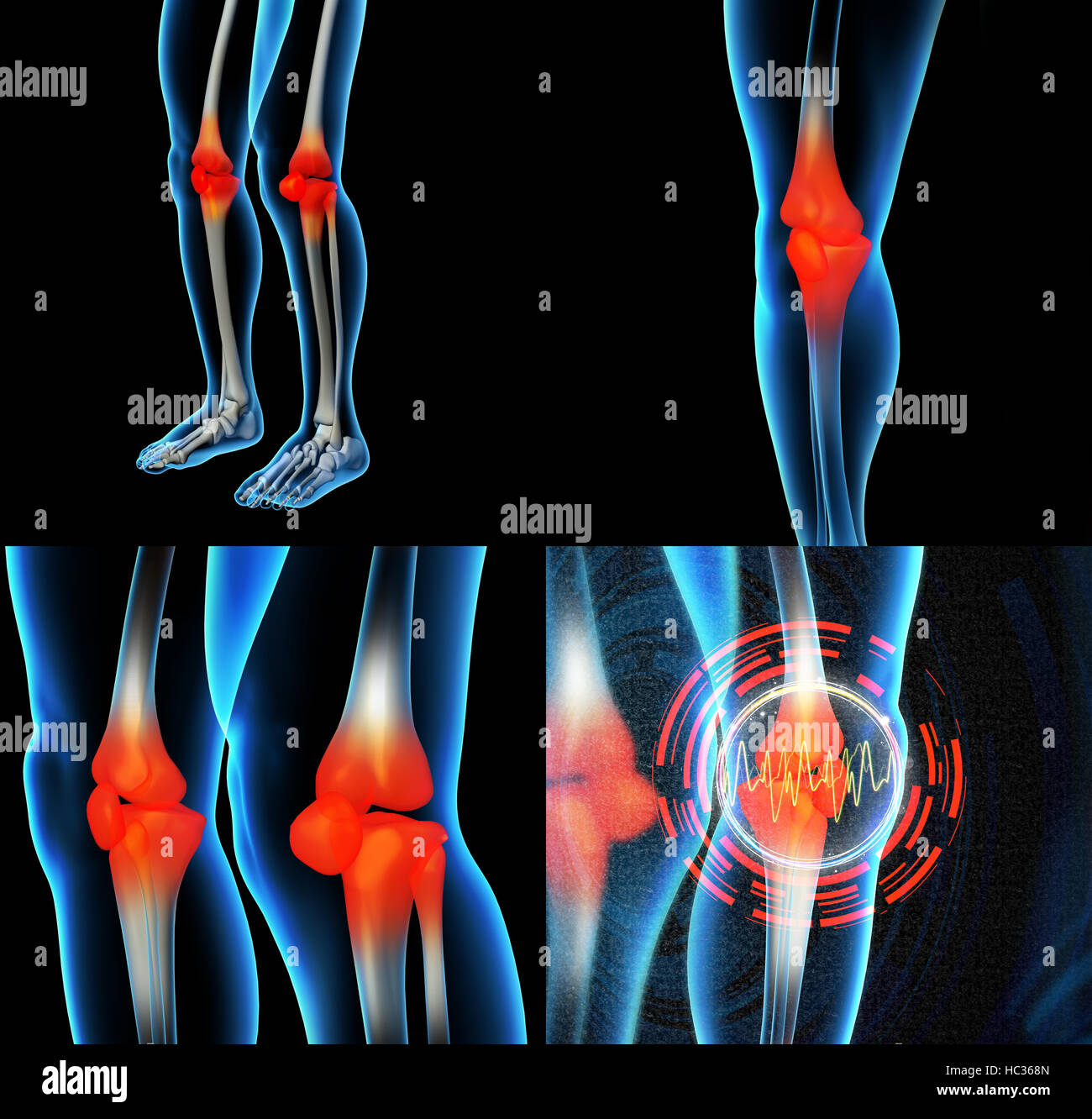 Human knee pain with the anatomy of a skeleton leg Stock Photo ...