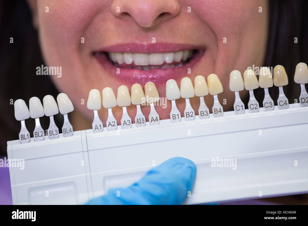 Dentist examining female patient with teeth shades Stock