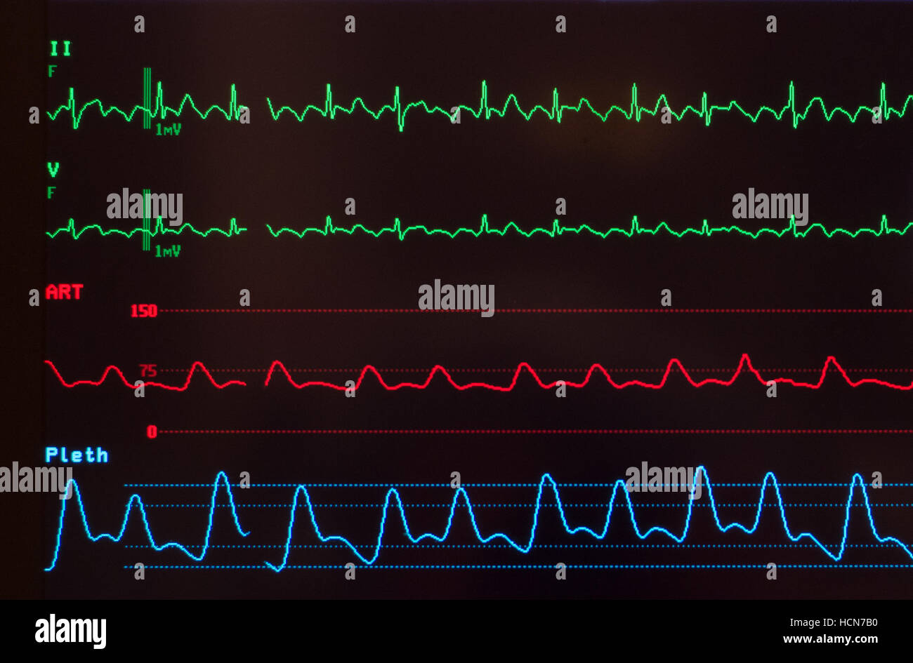 Close up of medical monitor with ECG with atrial flutter, arterial blood pressure wave and oxygen saturation level - Stock Image