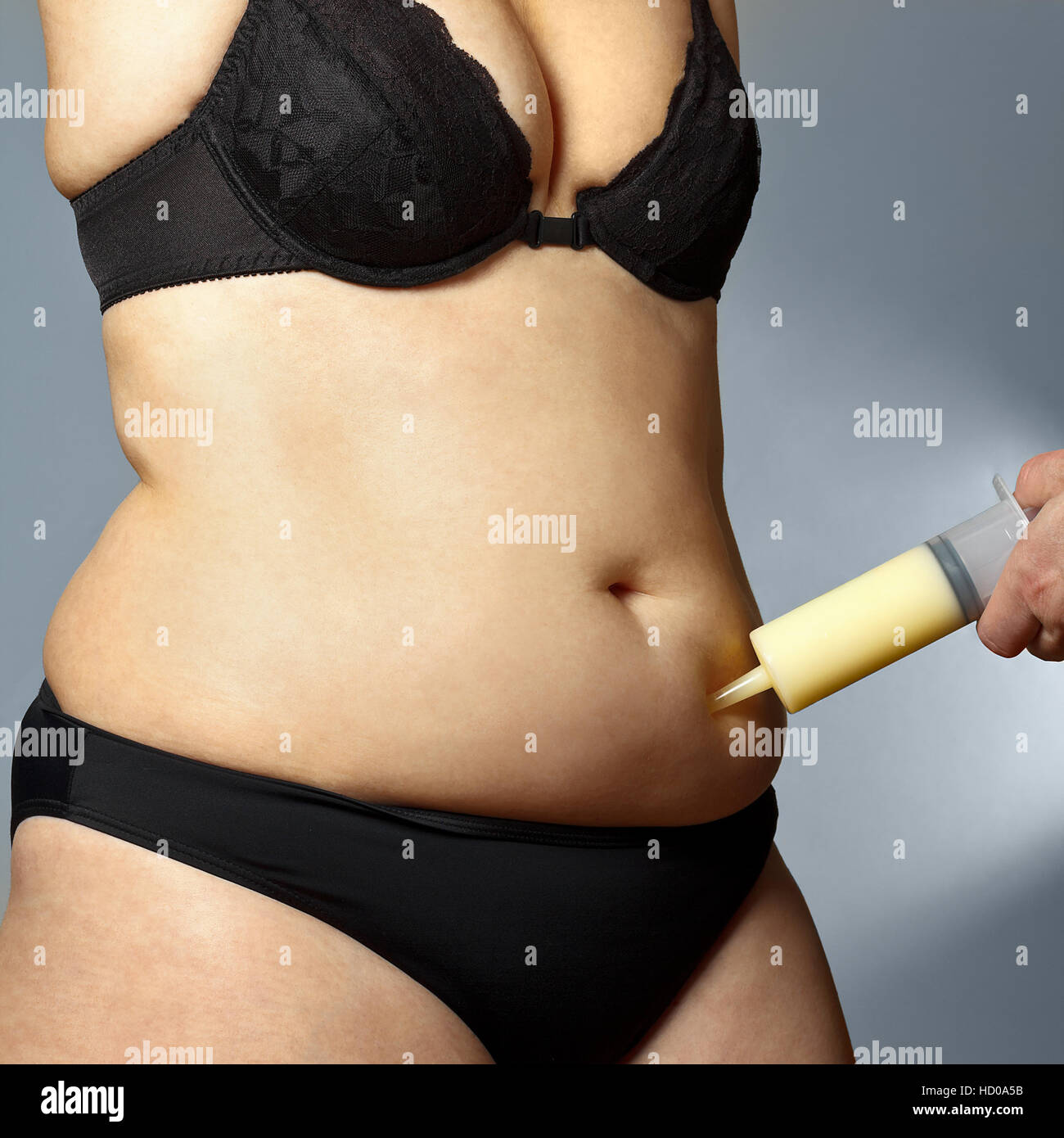 Body of a rotund woman in bra and pants with a male hand holding a syringe with fat sucked out of her belly, liposuction - Stock Image