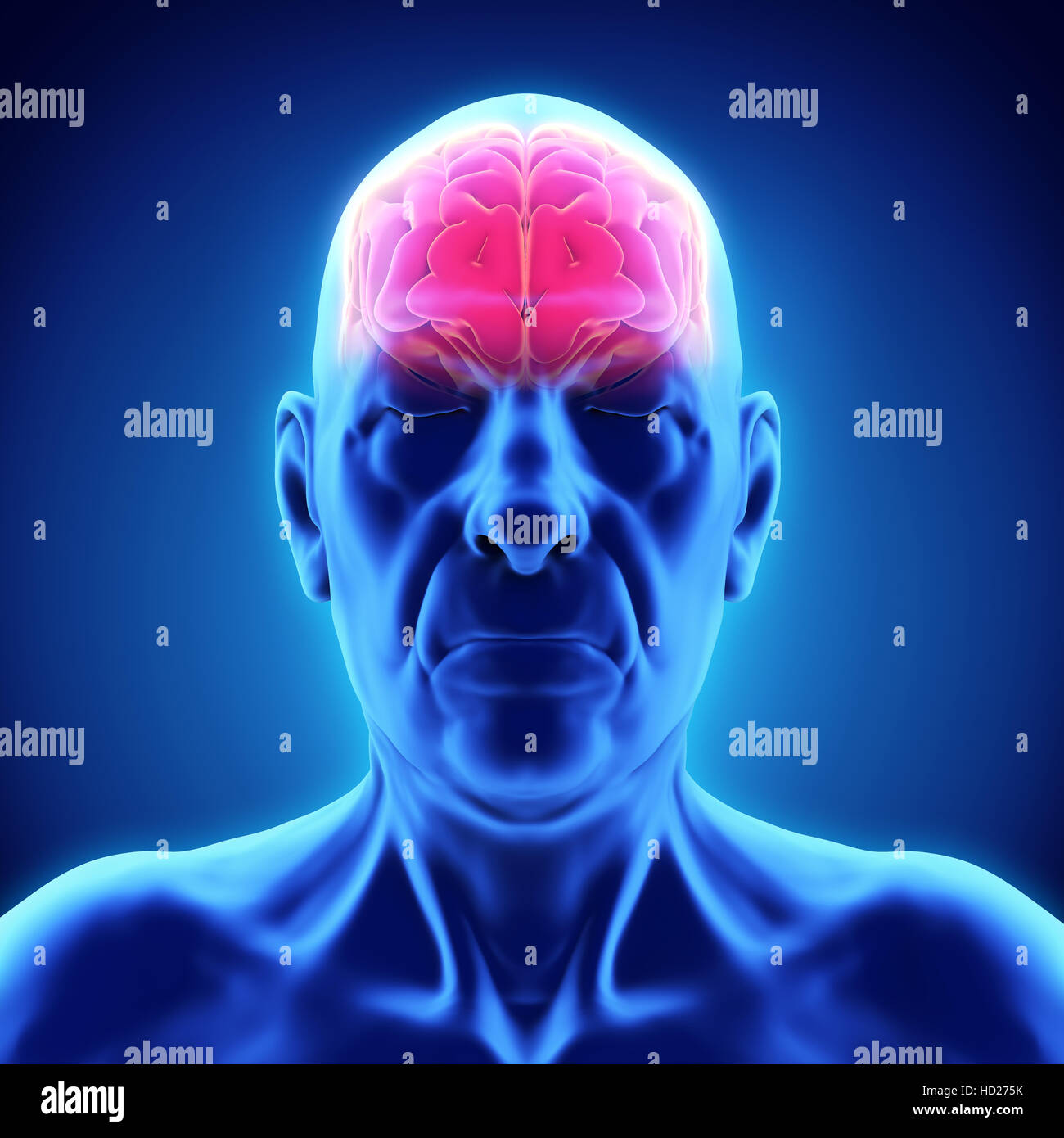 Brain Mri Dementia Stock Photos & Brain Mri Dementia Stock Images ...