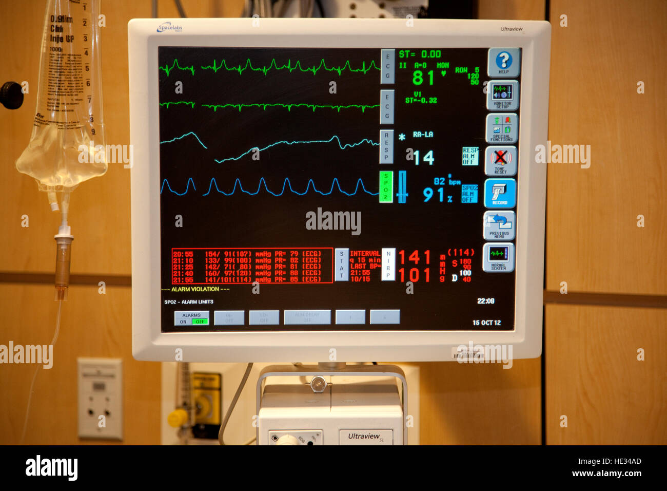 Hospital Ultraview patient bedside vital sign monitor. Fergus Falls Minnesota MN USA - Stock Image