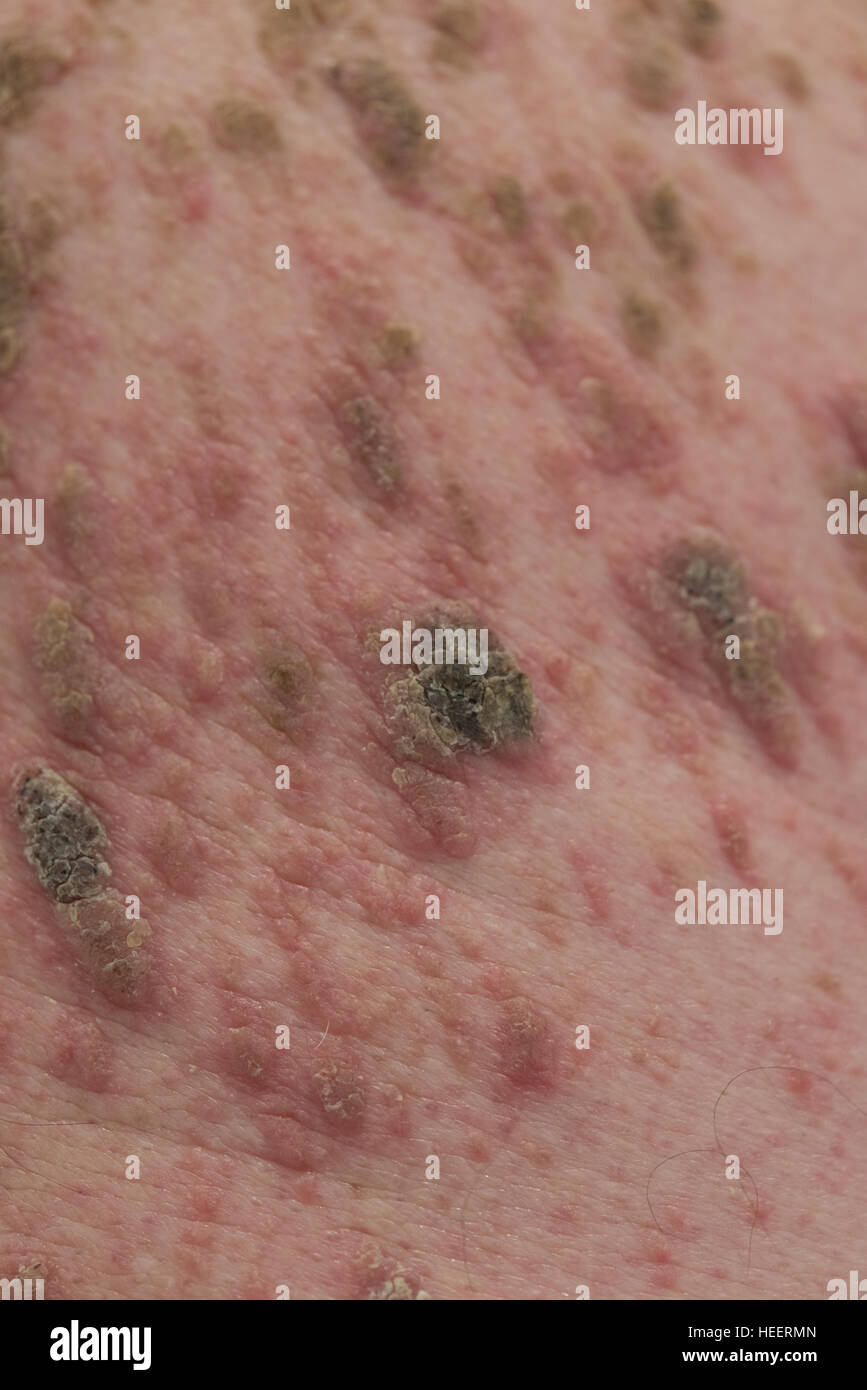 Mans back with mass of moles and infection - Stock Image