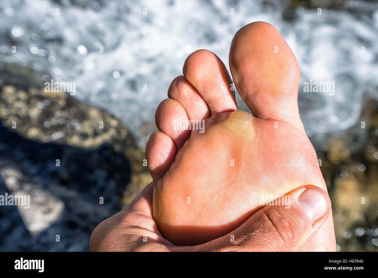 A sore blister on the John Muir Trail, Kings Canyon National Park, California, United States of America, North America - Stock Image