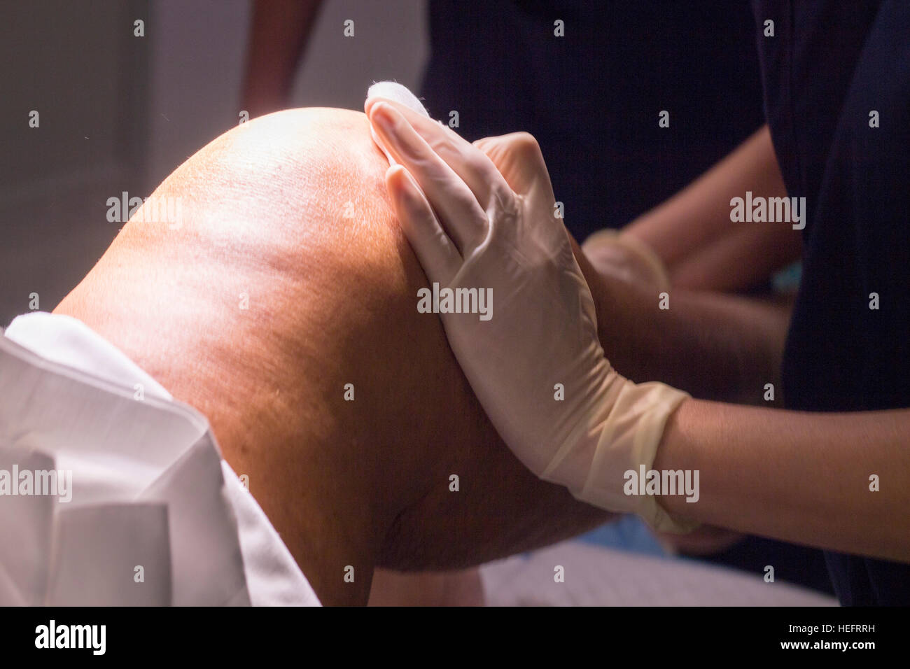 Anaesthetist pressing after anaesthetics injection before for surgical operation knee arthroscopy micro surgery - Stock Image