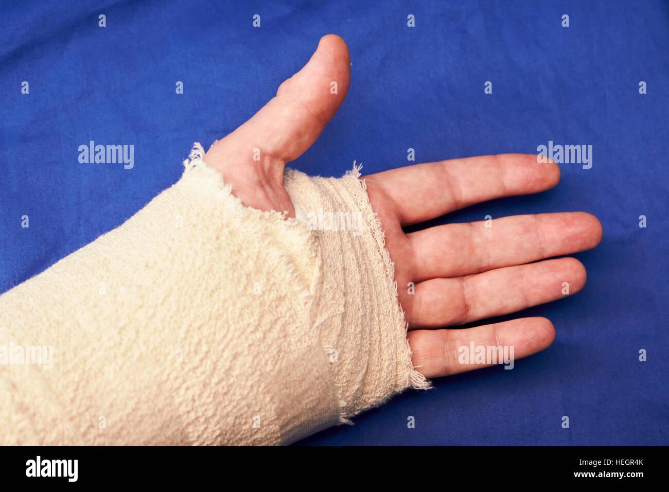 bandaged left hand after carpal tunnel injury surgery - Stock Image
