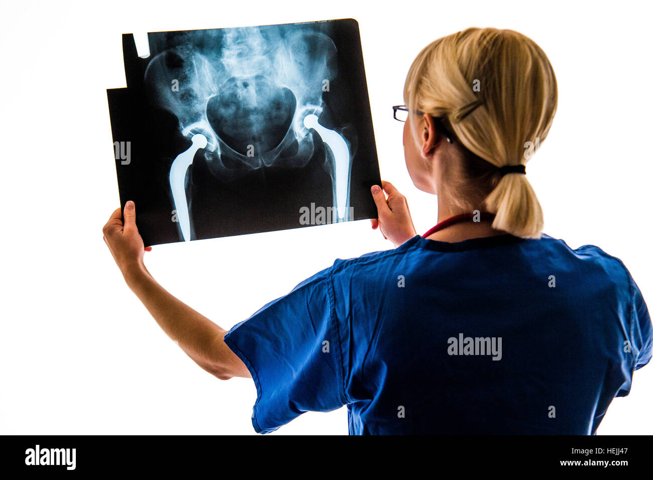 UK Health care professionals : A National Health Service (NHS) female woman  nurse looking at a set of x-ray images - Stock Image